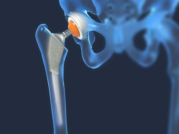 Cirujano-Ortopedista-en-Satelite-Dr-Daniel-Machuca-Especialista-en-Protesis-de-Cadera-v002-compressor