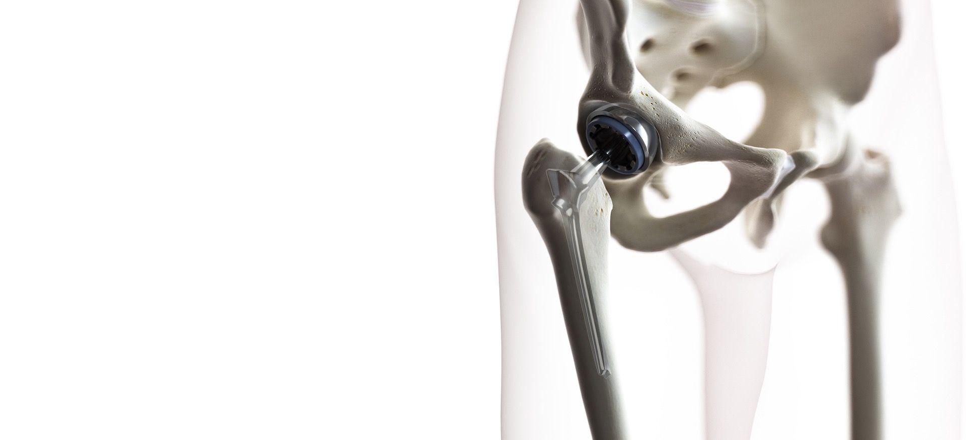 Cirujano-Ortopedista-en-Satelite-Naucalpan-Dr-Daniel-Machuca-Especialista-en-Ortopedia-v001-compressor